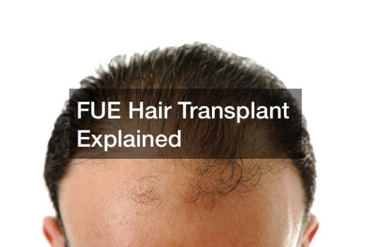FUE Hair Transplant Explained